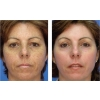 Image Gallery from   PEAU - Esthetique medicale